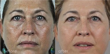 face showing before and after an erbium fractional resurfacing laser treatment
