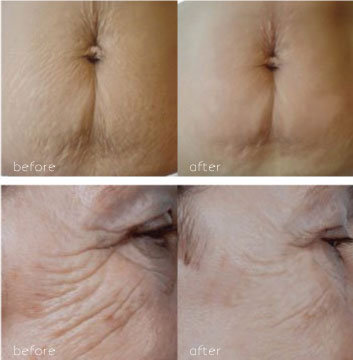 skin tightening laser treatment results