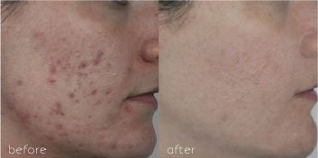 before and after IPL treatment on an acne patient