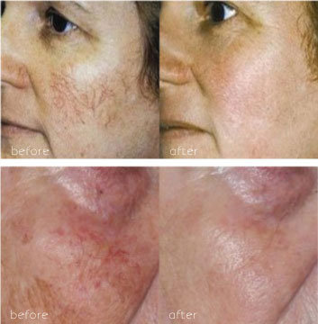 before and after results of IPL treatment on facial vessels
