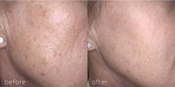 before and after IPL skin rejuvenation treatment