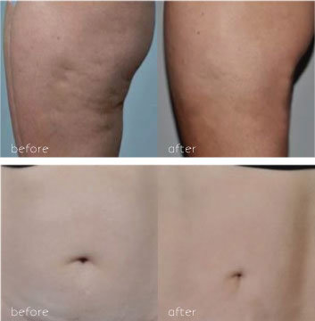 before and after photo of radio frequency fat reduction laser