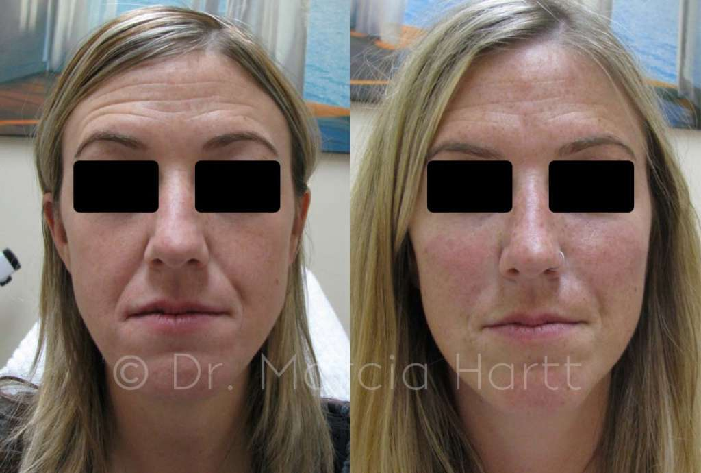 before and after cheek lift treatment