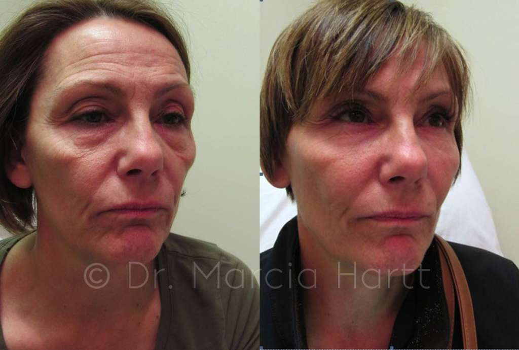 before and after a female tear trough cheek treatment