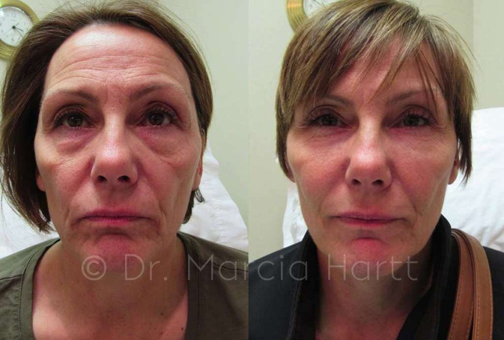 before and after female tear trough cheek treatment