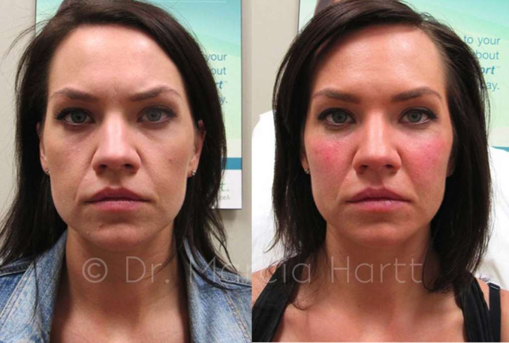 before and after of female tear trough cheek treatment