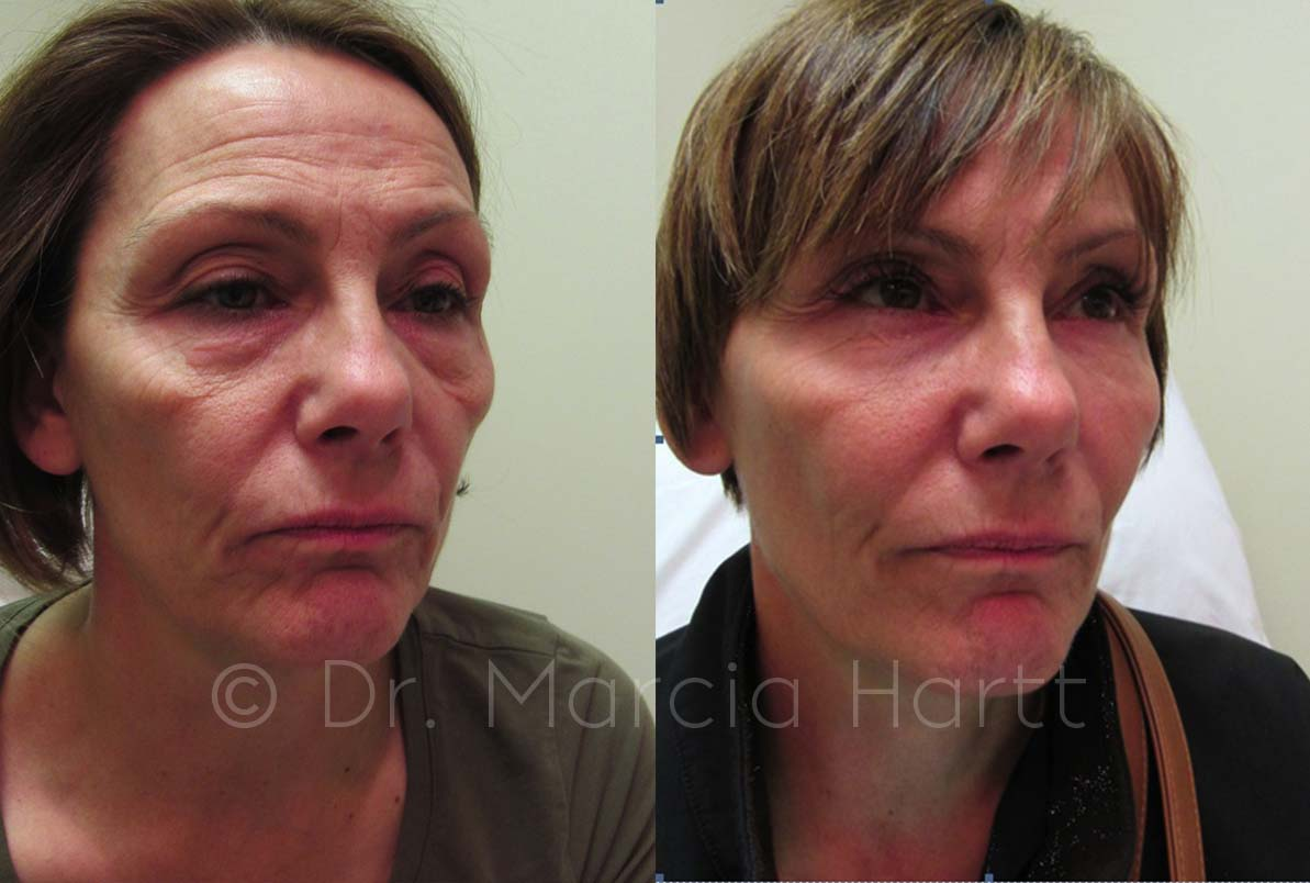 Before & After Medical Aesthetics Results | Dr  Marcia Hartt
