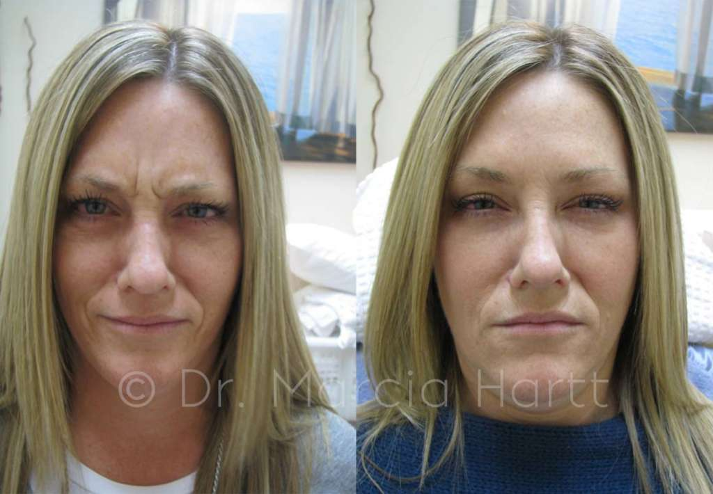 before and after frown line treatment