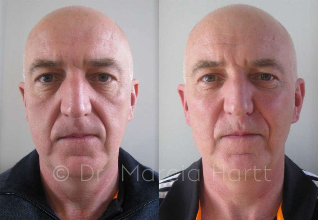 before and after male cheek trough treatment
