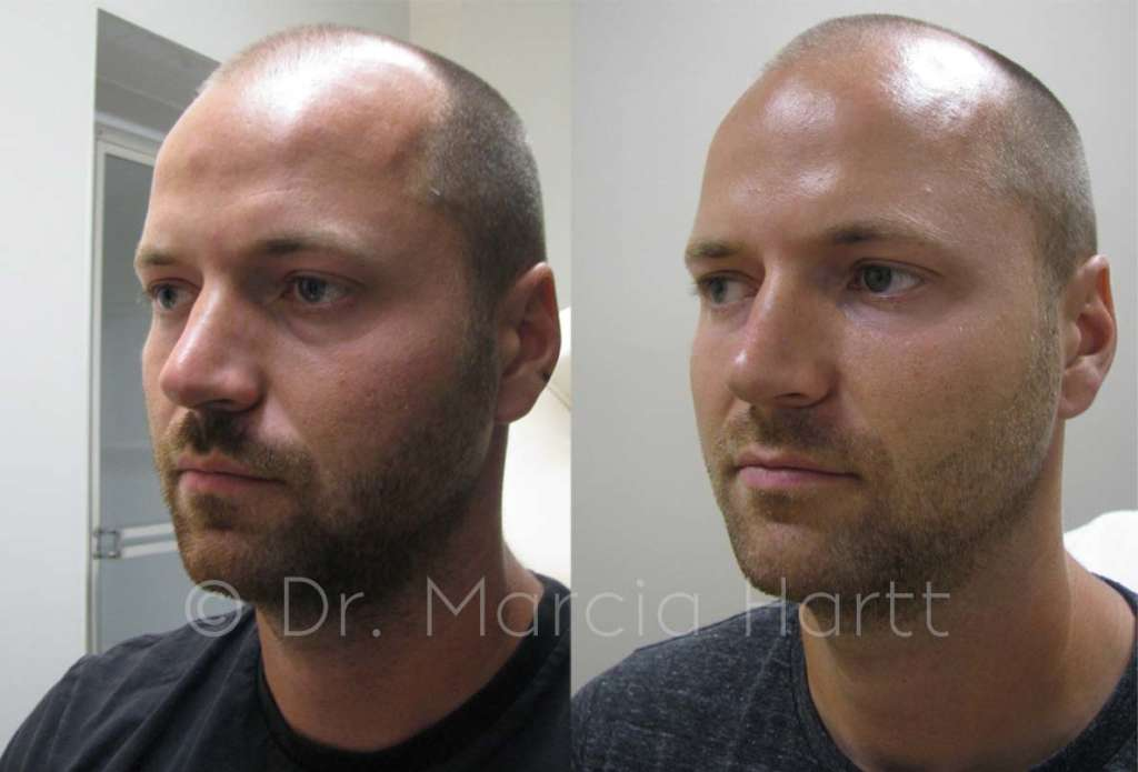before and after treating male tear troughs on cheeks