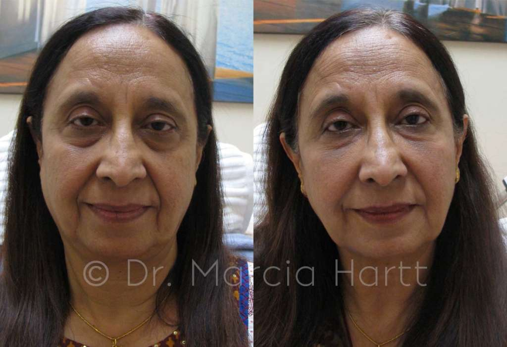 before and after a non surgical face lift