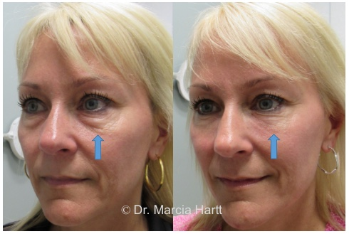 Results of anti-aging treatment for aging tired eyes