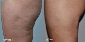 Before and after image showing results of body cellulite removal by Dr. Marcia Hartt