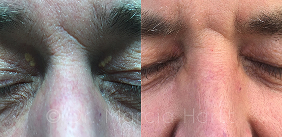 Before and after image of eyelid lesion removal by Dr. Marcia Hartt