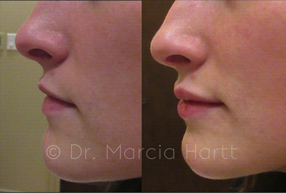 Before and After images for lip injection treatment by Dr. Marcia Hartt