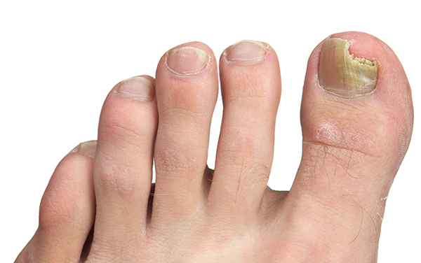 Untreated toenail fungus condition
