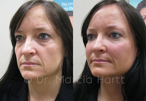 Before and after image - non-surgical facelift by Dr. Marcia Hartt