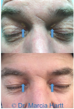 Before and after images showing the removal of raised lesions on the eyelids