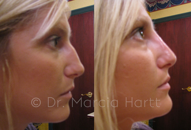 Non-surgical rhinoplasty results following treatment with Dr. Marcia Hartt