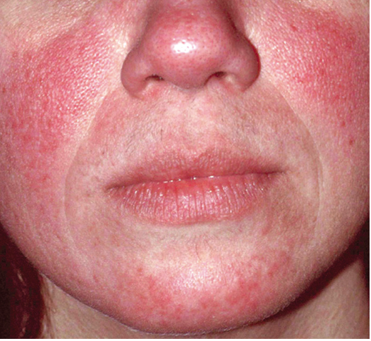 Rosacea skin condition before treatment