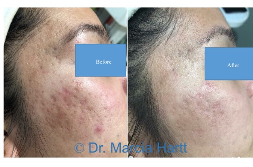 Before and after photo showing results of acne scar removal by Dr. Marcia Hartt