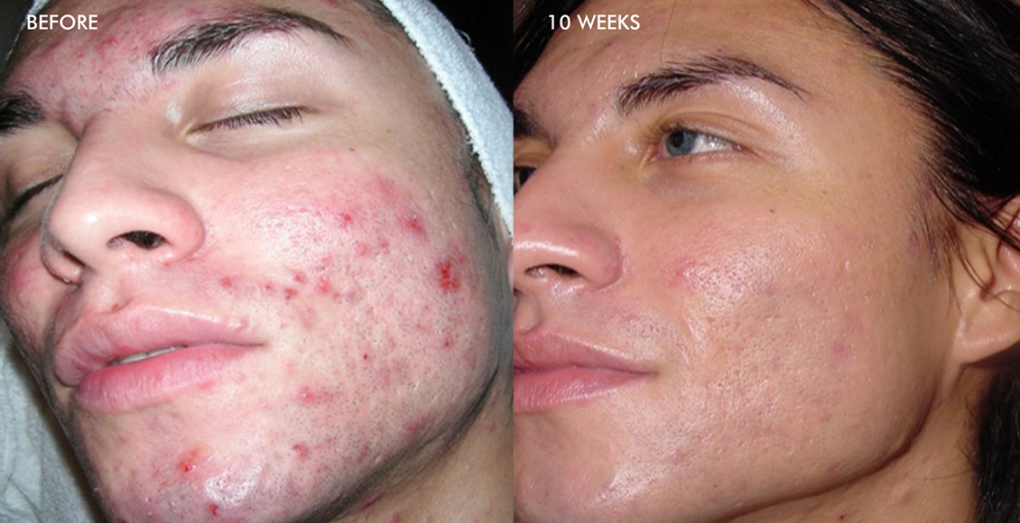 results of acne treatment by Dr. Marcia Hartt