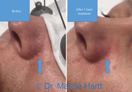 Image showing results of laser treatment to treat facial spider vessels