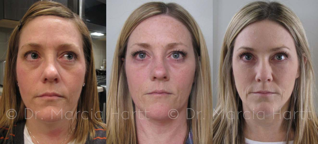 Before and after images for tear trough treatment by Dr. Marcia Hartt