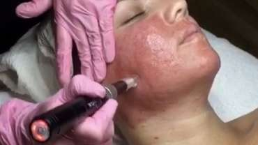 How Microneedling can Help You!